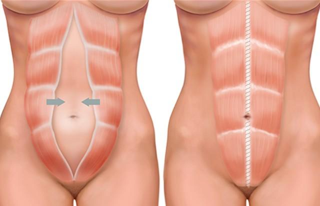 diastase na bevalling